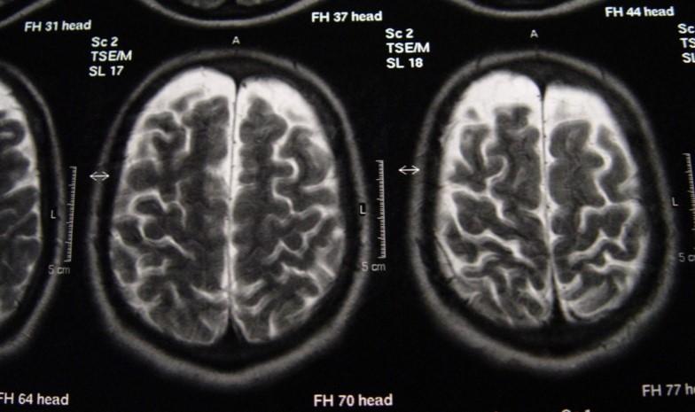 Zaburzony Rozwój Mózgu Przez Zażywanie Ketaminy, UltimateSeeds.pl